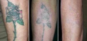 Убрать некрасивую татуировку  Удаление татуировок лазером tattoo removal 2 300x140